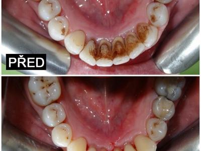 Přijmeme dentální hygienistku